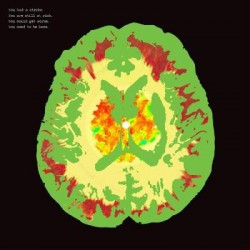 Minus 5, The - Stroke Manor LP (brainwave colored vinyl)